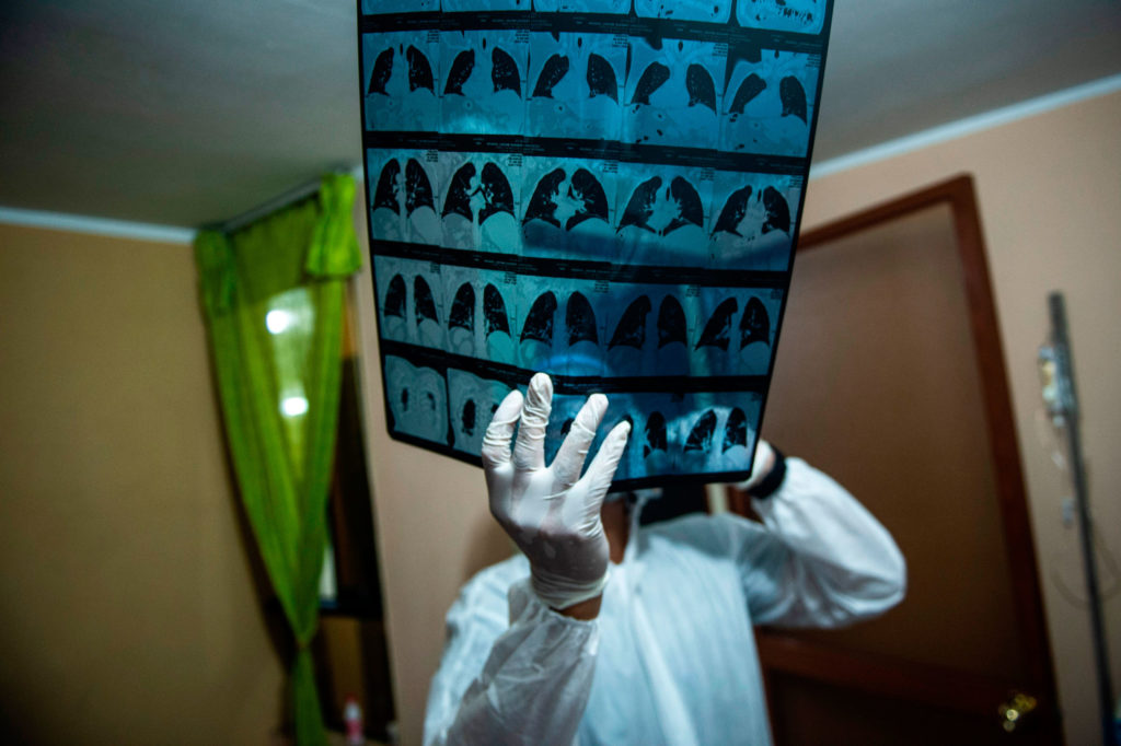 A doctor checks an X-ray of a Covid-19 patient at a home on the eastern outskirts of Lima, Peru on January 22.