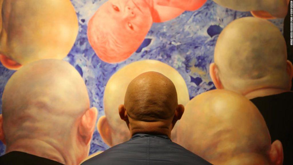 As hair loss rises, bald men in Asia grapple with cultural stigmas