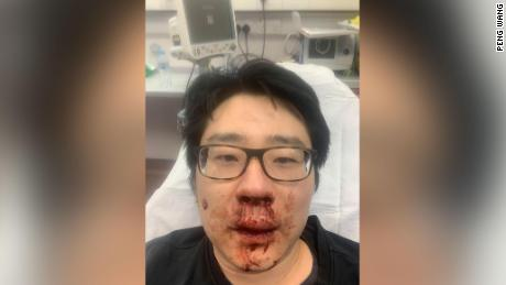 Peng Wang, a university professor, was attacked while out on a jog in late February in Southampton, southern England.